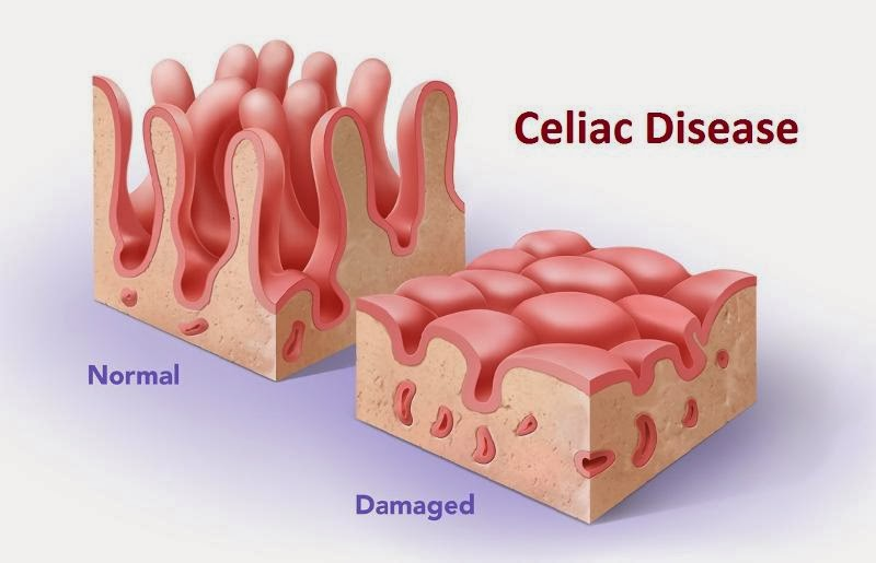 Misconceptions in Celiac Disease